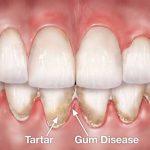 doenca-periodontal-o-que-e-e-que-cuidados-deve-se-ter-para-evita-la.jpg