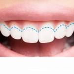 gum-recession-blog-graphics-receding-gums.png